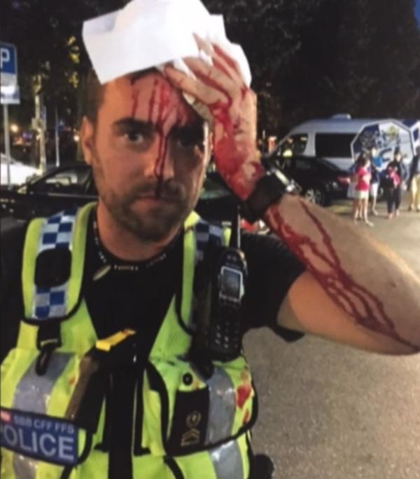 Mit diesem Bild des verletzten Polizisten durch eine geworfene Flasche berichtete die Rundschau über die Thematik Fan-Extrazüge (Bild: SRF Rundschau).