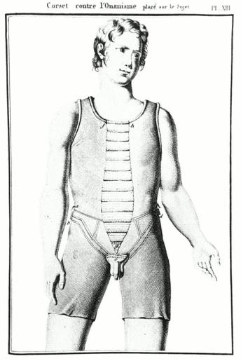 Ein Korsett zur Verhinderung von Masturbation aus Frankreich aus dem frühen 19. Jahrhundert.