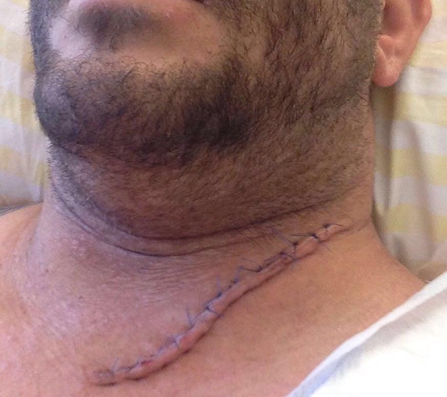 Die Narbe am Hals musste mit 15 Stichen genäht werden. Sie wird für immer sichtbar bleiben. (Bild: zvg)