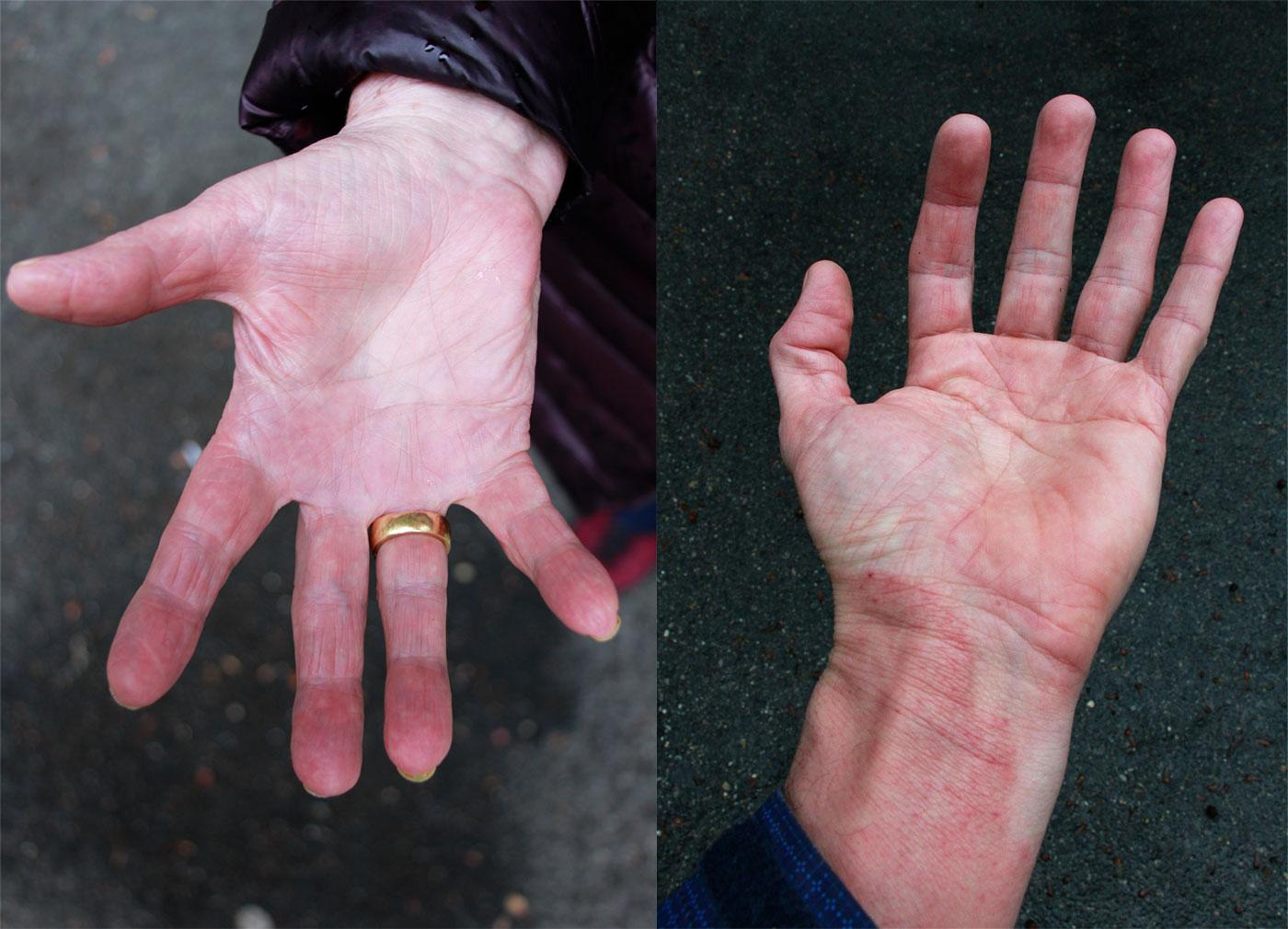 Der Krankheit die Hand bieten: Hände nach dem Krankensalbungs-Gottesdienst in der Luzerner Pauluskirche.
