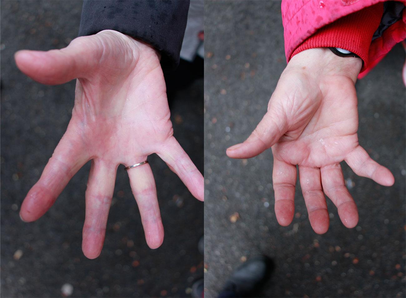 Auch diese Hände wurden im Gottesdienst gesalbt.