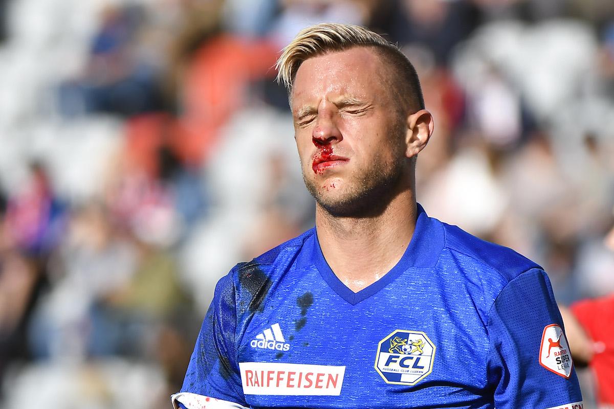 Reto Ziegler musste im Spiel gegen Thun mit Verdacht auf Nasenbeinbruch und Hirnerschütterung ausgewechselt werden.
