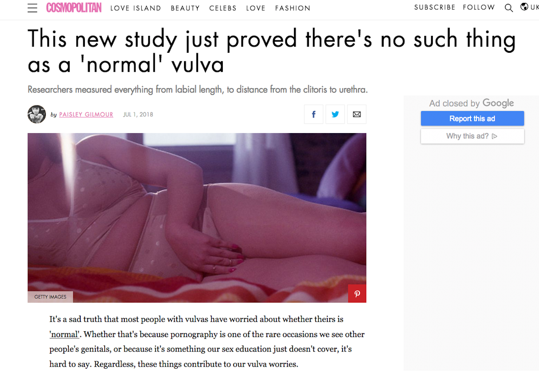 «Diese neue Studie bewies, dass es so etwas wie eine ‹normale› Vulva nicht gibt», titelte die britische Cosmopolitan.